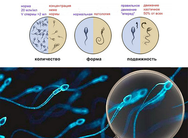 спермограмма подольск