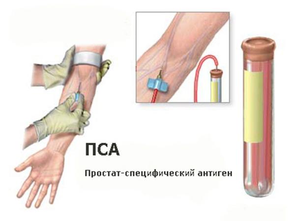 анализ на онкомаркеры подольск