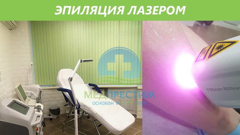 Насколько эффективна эпиляция лазером? Фото