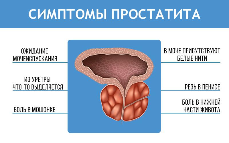Лечение простатита в архангельске
