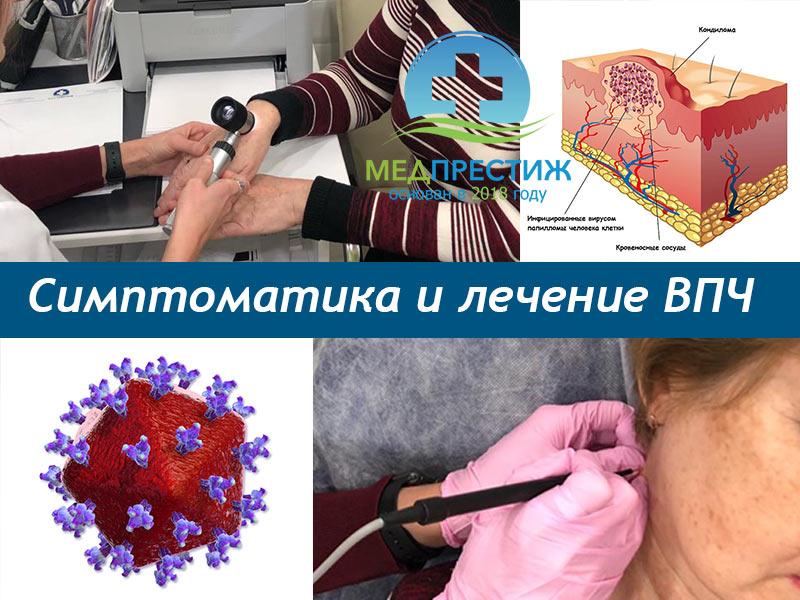 лечение ВПЧ