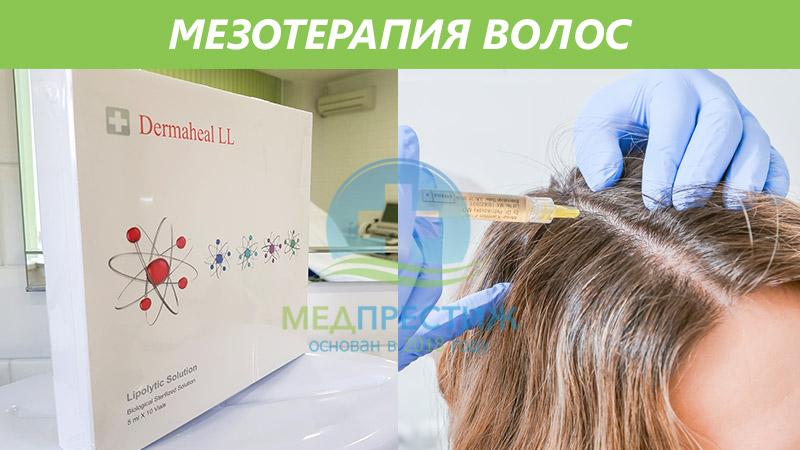 Мезотерапия волос Фото