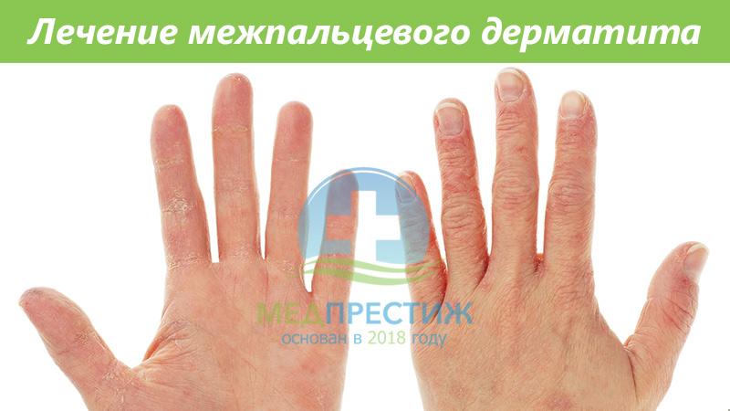 Лечение межпальцевого дерматита Фото