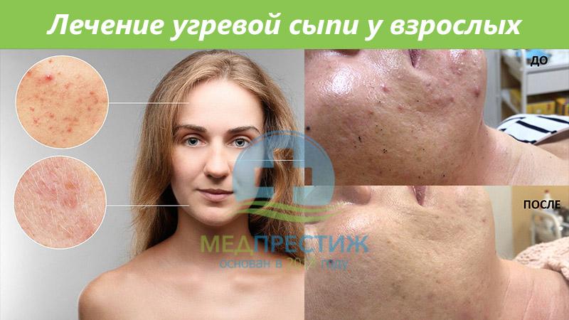 Лечение угревой сыпи взрослых Фото