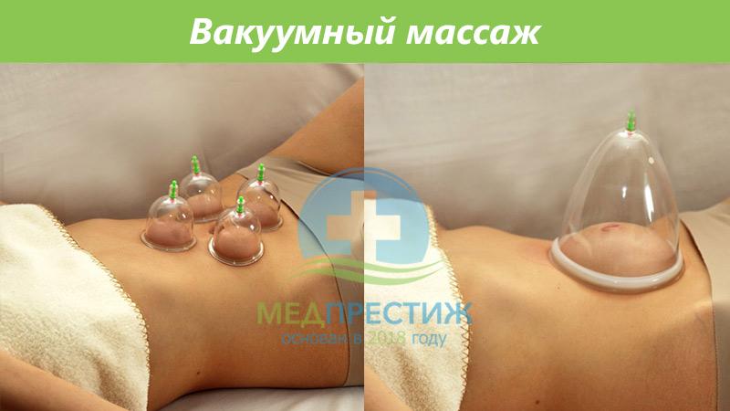 Польза профессионального вакуумного массажа Фото
