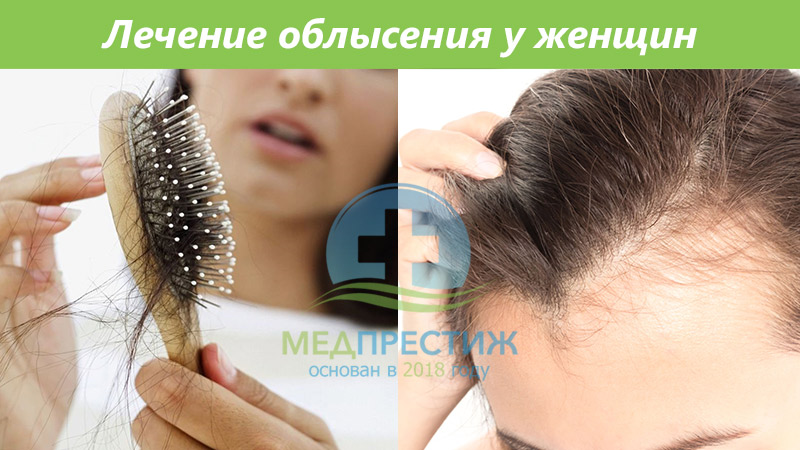 Лечение облысения у женщин Фото